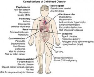 ObesityC