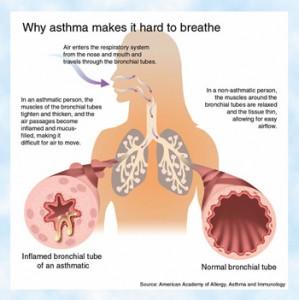 AsthmaC